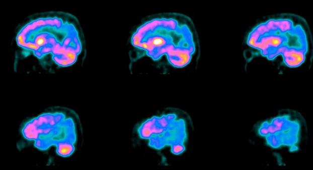 PET scanning af hjernen viser tegn på Alzheimer's