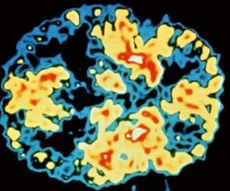 Hjerne med Lewy's Body Demens